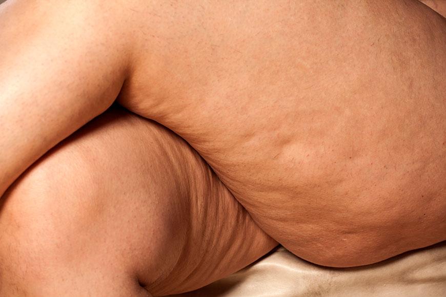 Resultado de imagem para Celulite